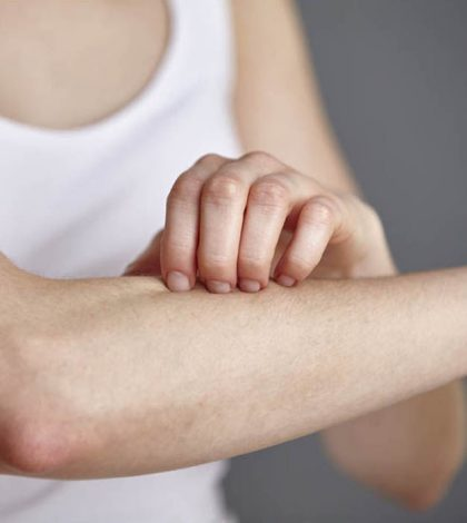 Painful Psoriasis Symptoms Could Be Soothed By Curcumin | www.curcuminhealth.info