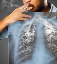 How Curcumin May Reverse Tobacco Induced Damage In Lungs | www.curcuminhealth.info