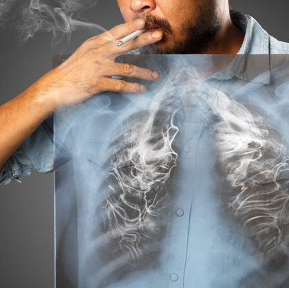 How Curcumin May Reverse Tobacco Induced Damage In Lungs | www.curcuminhealth.info