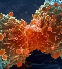 Curcumin Proven to ELIMINATE Stage-3 Myeloma Cancer | www.curcuminhealth.info